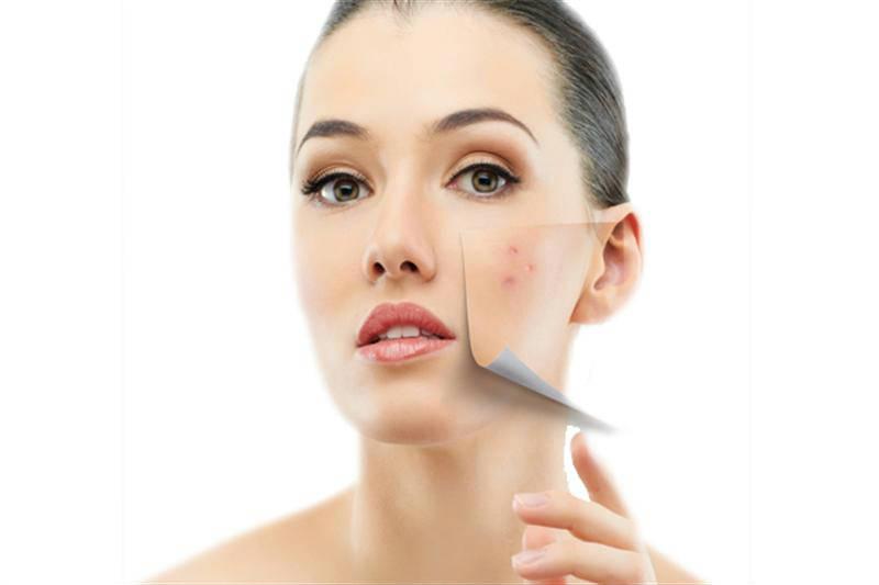 facial burn surgery
