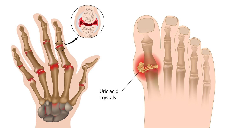 rheumatoid arthritis surgery